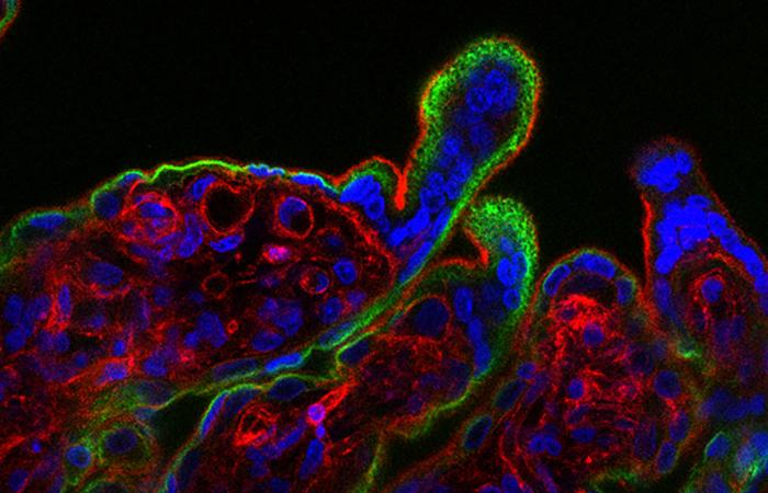 Creditos: L. Yockey et al./Science Immunology 2018/Dr. Carolyn Coyne