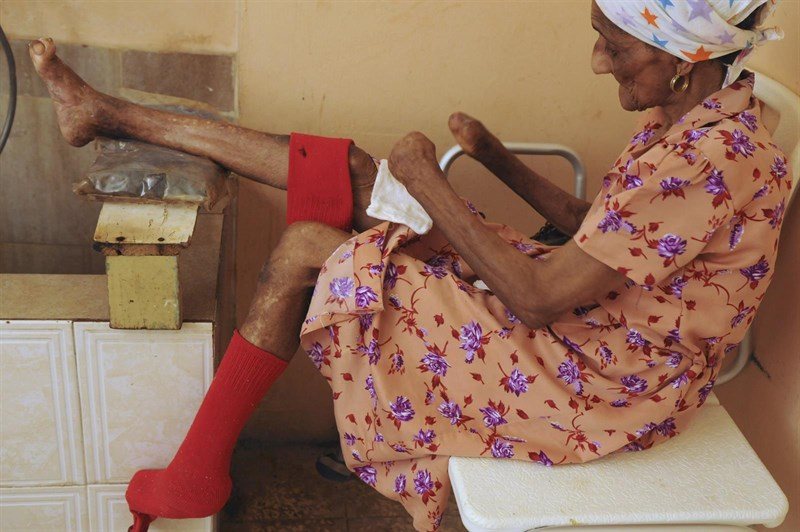 Barrancabermeja conmemora hoy el Día internacional de la lucha contra la lepra