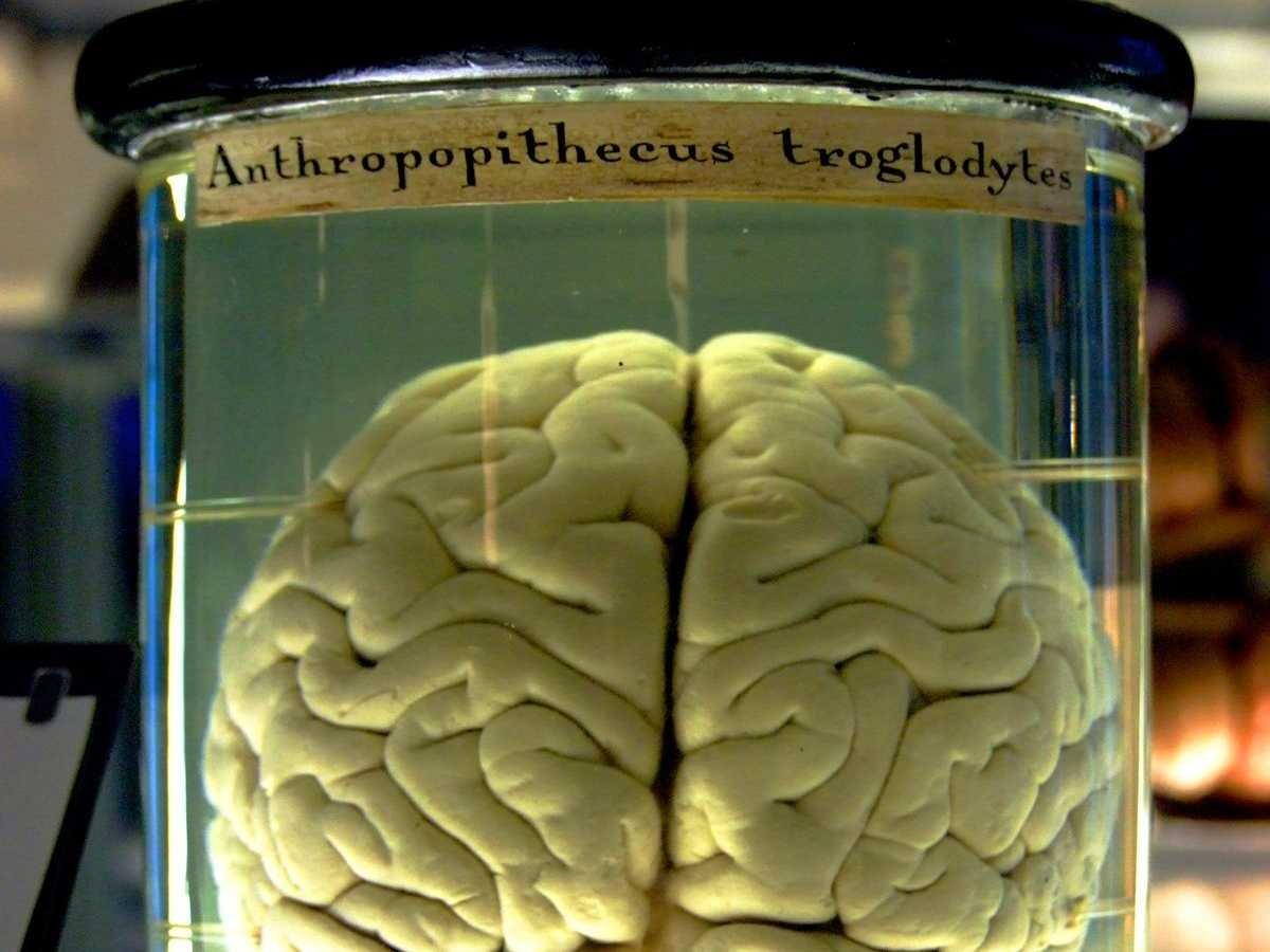 conservación cerebro afuera del cuerpo