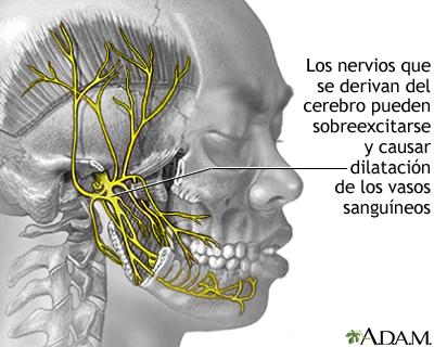 Migraña dilata los nervios