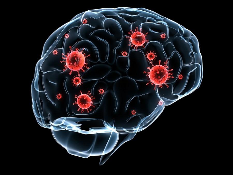 Cuando los astrocitos son atacados se hace posible la metástasis cerebral