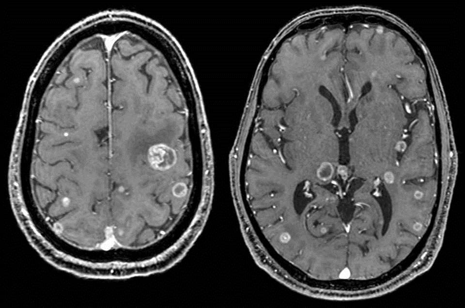 Imagen de la metástasis en un cerebro