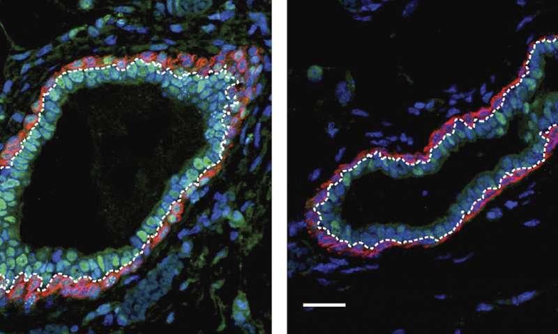 Proteína epigenética reguladora de la metiltransferasa de ADN.