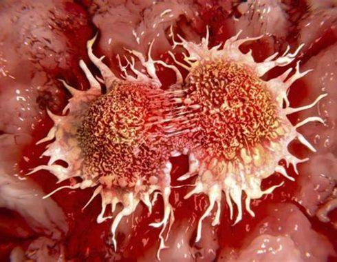 Dieta y vitamina C: novedoso tratamiento conta el cáncer
