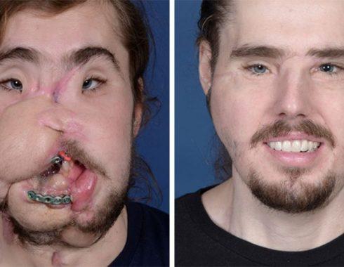 Cirujanos dan a conocer procedimiento para trasplante de rostro más avanzado hasta ahora