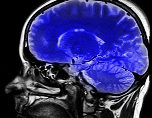 El síndrome del miembro fantasma provoca plasticidad cerebral en áreas sensomotoras