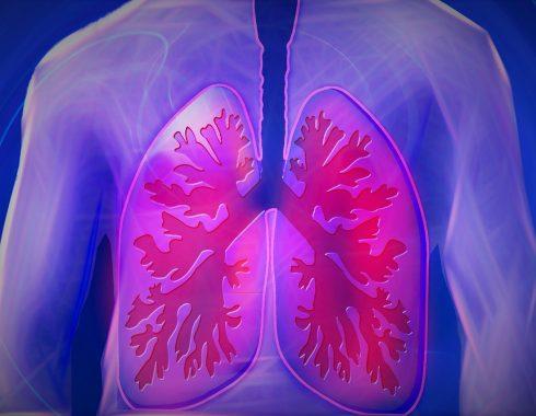 Medicamentos senolíticos podrían reducir el impacto de la fibrosis pulmonar idiopática
