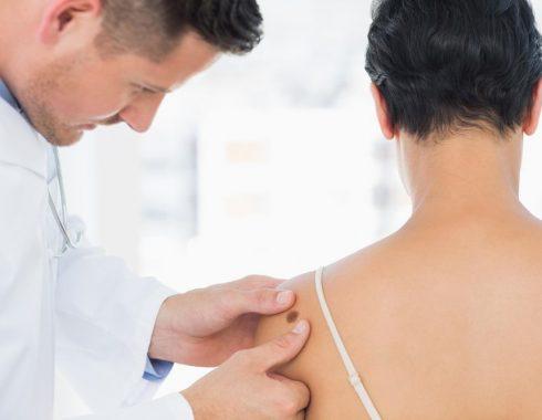 Hallan compuesto que podría combatir el melanoma