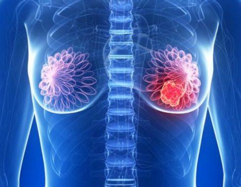 microambiente ácido en tumores ayuda a que se propaguen