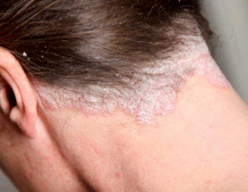 Psoriasis en el cuero cabelludo: síntomas, prevención y tratamiento
