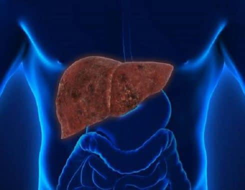 Tratamiento genético puede frenar hepatopatía alcohólica