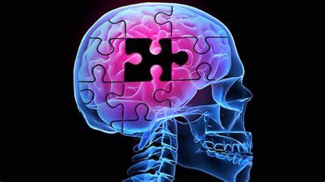 Enfermedad de Alzheimer y el deterioro progresivo de la función cognitiva.
