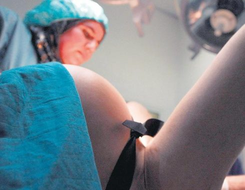 complicaciones del parto