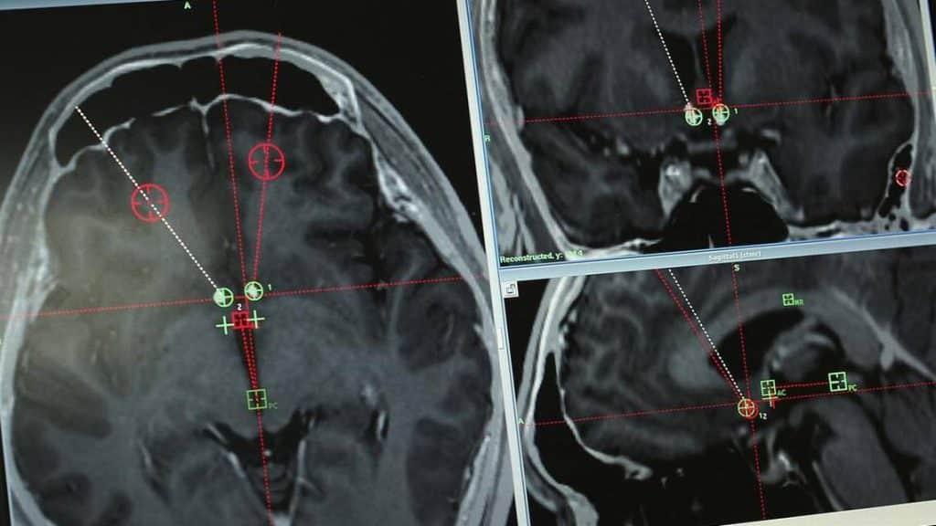 Estimulación cerebral profunda para combatir adicciones a drogas