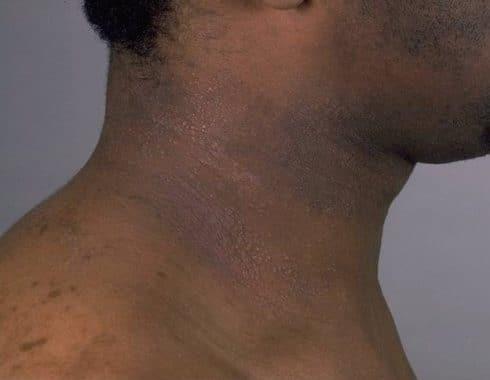 Eccema, la enfermedad que irrita e inflama la piel