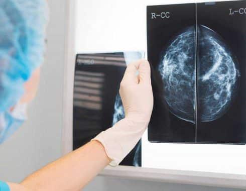 Nuevo tipo de inmunoterapia podría combatir tumores cerebrales