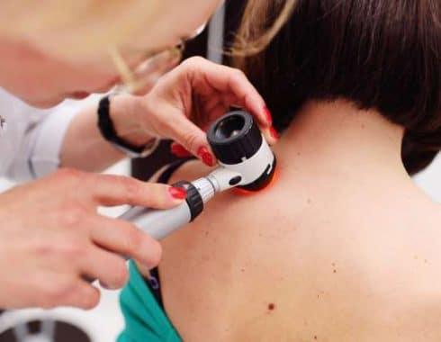 Nueva combinación de fármacos permite a uno de cada dos pacientes sobrevivir a melanoma metastásico