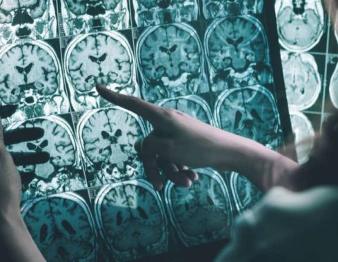 Mutación genética Alzheimer