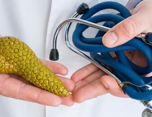 Posible cura cáncer de páncreas