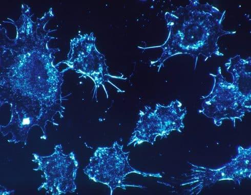 Cómo matar células cancerosas en cuestión de milisegundos
