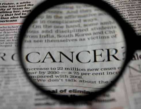 Detección temprana del melanoma para tratamiento efectivo
