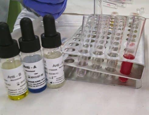 Grupos sanguíneos del sistema ABO
