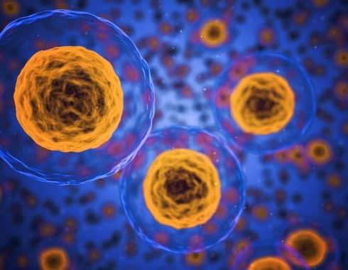 ¿El cáncer es igual a metástasis?
