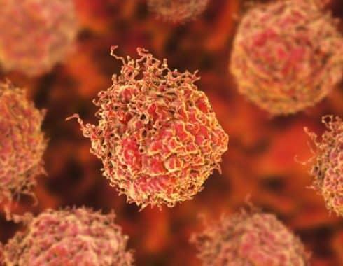 Tipos de células cancerosas para diagnóstico y pronóstico de cáncer