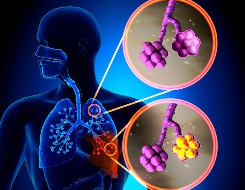 Los antibióticos usados en COVID-19 aumentan la resistencia bacteriana