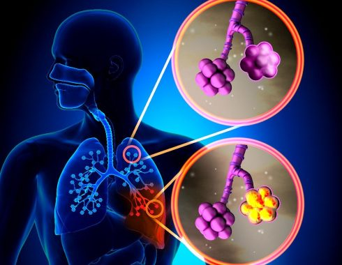 Antibióticos usados para COVID-19 aumentan resistencia bacteriana