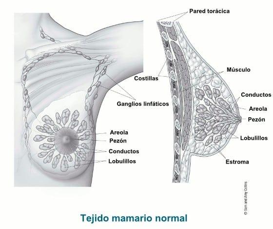 Cáncer de mama: el más frecuente en mujeres