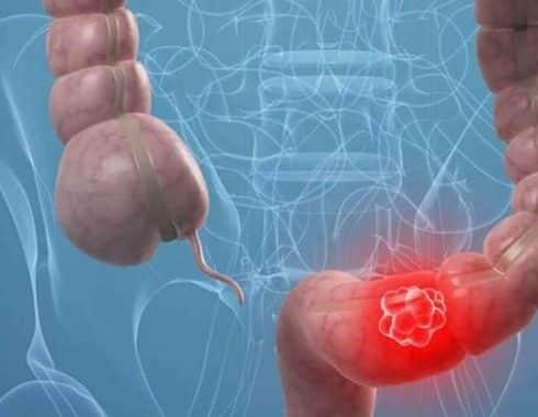 Asociación entre sepsis por bacterias anaerobias y cáncer colorrectal