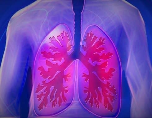 Cáncer de pulmón: ¿enfermedad común por tabaquismo?