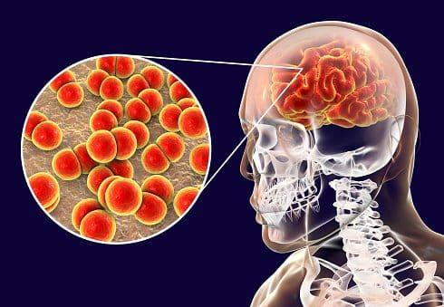 Meningitis, resistente a antibióticos
