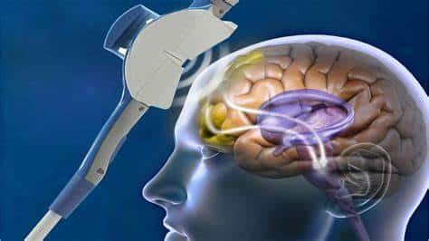 Uso de ultrasonido en el cerebro humano