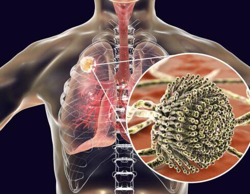 Relación entre el SDRA y los hongos pulmonares
