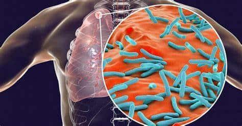 La tuberculosis como principal asesino mundial