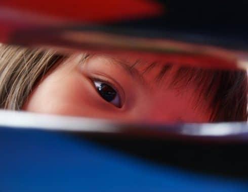 Enfermedad de Coats: más allá de un problema de visión infantil
