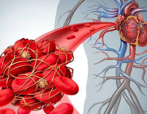 por qué se forman los coágulos en la sangre