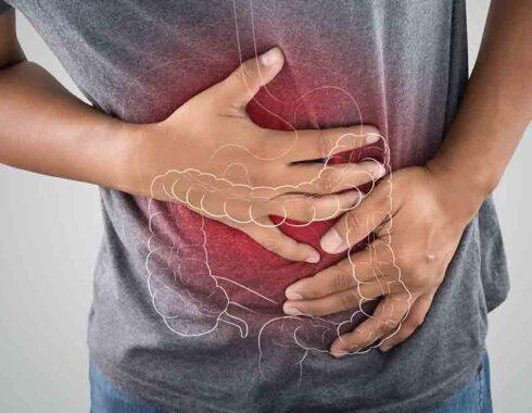Colitis: causas, tipos, diagnóstico y tratamiento
