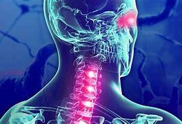 Esclerosis múltiple: detectan nuevos tipos por IA