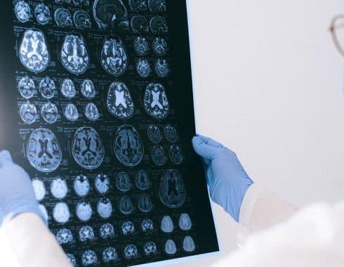 Estimulación cerebral magnética ayuda a la memoria